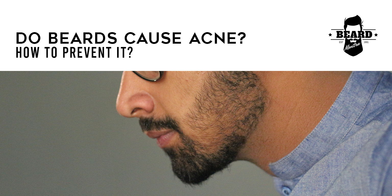 do beards cause acne how to prevent it - beard mantra
